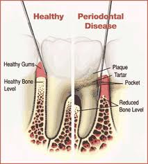The difference between healthy gums and gum disease